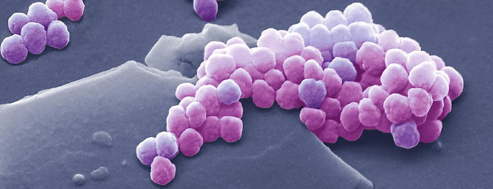 Kolorierte Aufnahme eines Rasterelektronenmikroskops von Mikroplastik