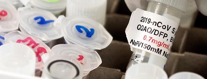 Antikörperproben in einem Labor