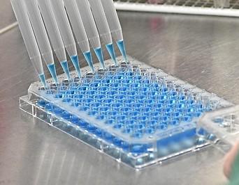 Laboruntersuchung zur Abklärung des Coronavirus